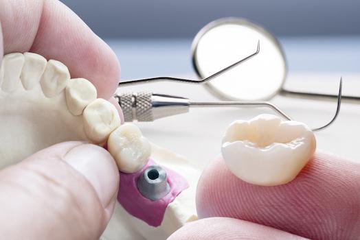 dental crowns albury