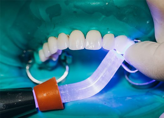porcelain veneers provide the most dramatic smile makeovers albury