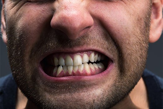 symptoms associated with tmj disorders albury