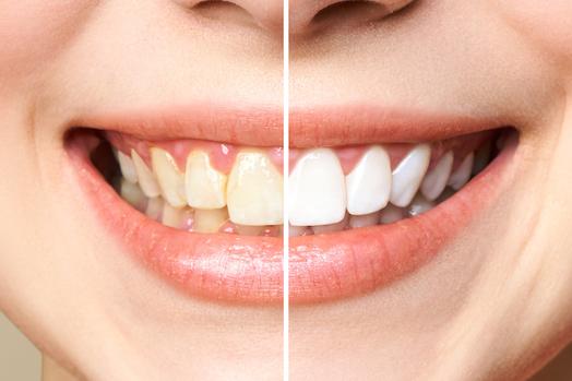 teeth whitening albury