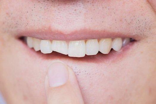 brooken tooth blurb dental emergencies albury