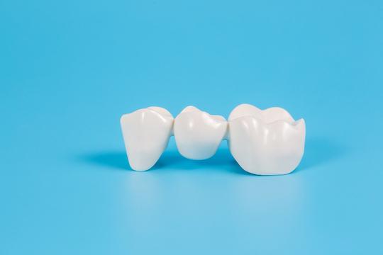 dental bridges blurb albury