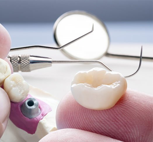 lost and damaged dental restorations what to do albury