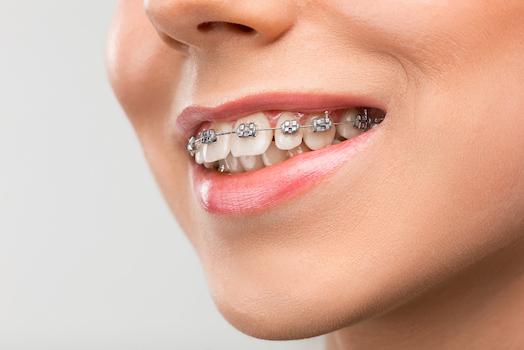 orthodontics albury