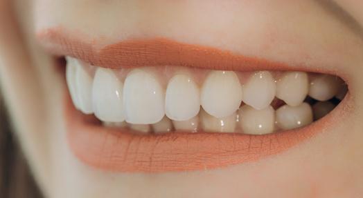 tooth wear treatment albury