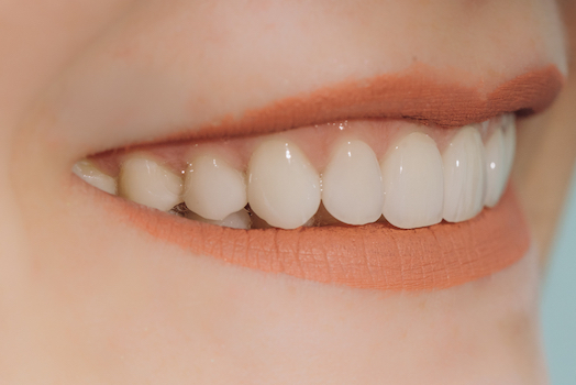 treatment for tooth wear albury