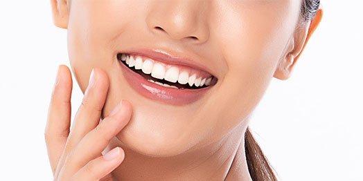 dental bonding albury