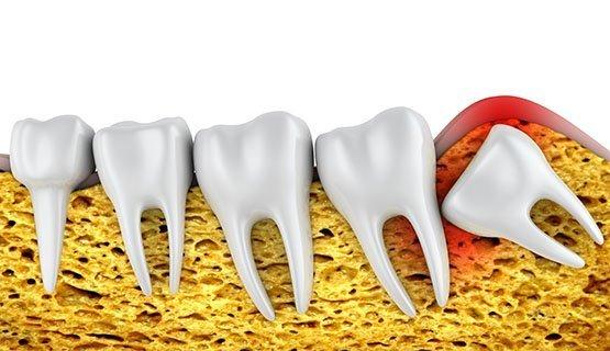wisdom teeth extraction albury
